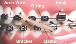 orthodontic-terms